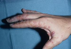 Лечение заболевания дисгидроз кистей рук