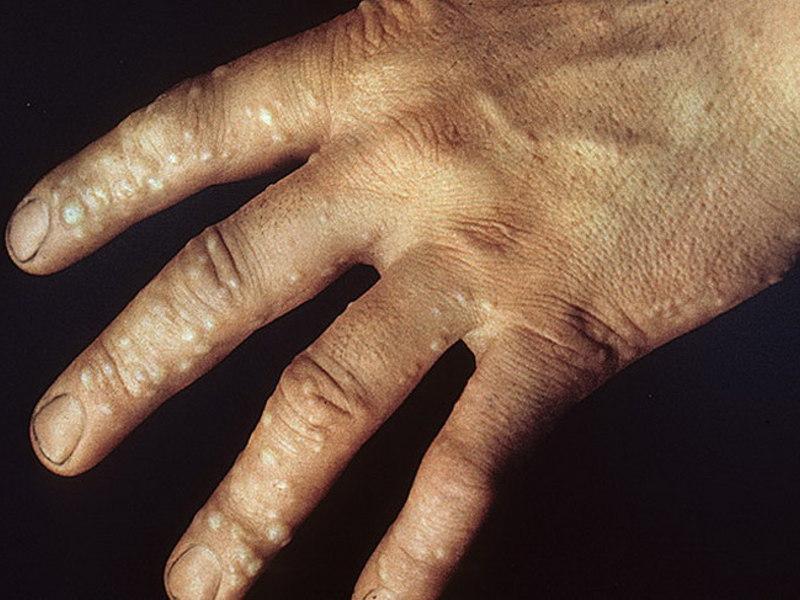 аллергия на помидоры симптомы у взрослых фото