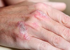 Какие условия воздействуют на появление псориаза