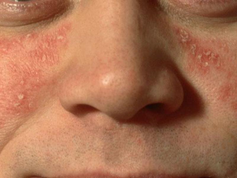 seborrheic psoriasis