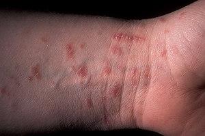 паразиты у людей симптомы и лечение