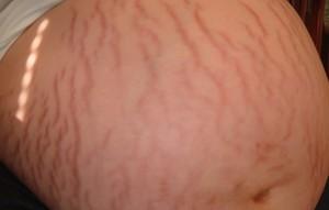 Причины возникновения стрий и способы борьбы с дефектом с помощью косметологических процедур