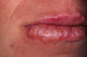 Причины кожных заболеваний