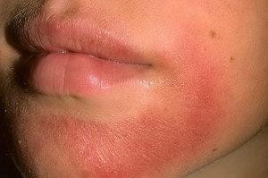 Способы лечения дерматита