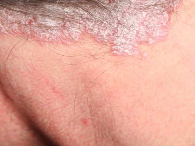 Псориаз у ребенка на голове лечение народными средствами