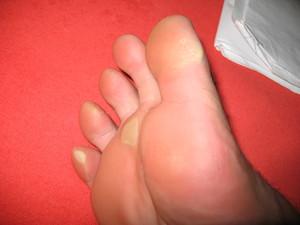 Черная мозоль на пальце ноги