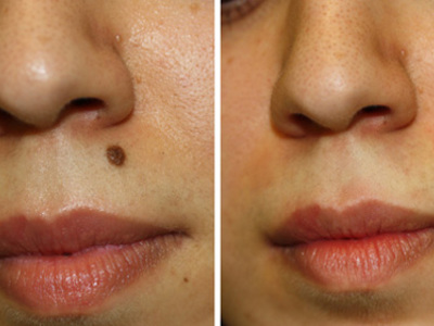 Удаление родинок на лице до и после