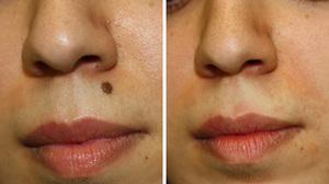 удаление родинок лазером на лице до и после фото