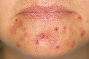 Сыпь на теле у взрослого человека на нервной почве: симптомы ...