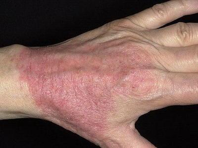 Контактный дерматит - фото, симптомы и лечение у взрослых