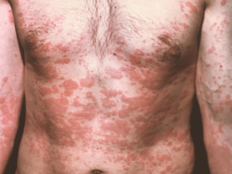Аллерготоксикодермия - сыпь показана на фото.