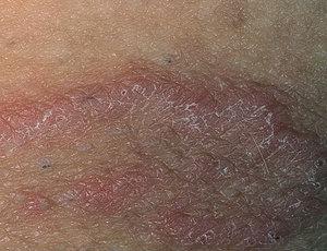 аллергия на грибок