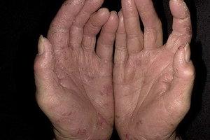 Начальные стадии псориаза - фото того как начинается заболевание