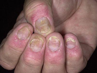 Псориаз ногтей на ногах и руках: симптомы и лечение в домашних условиях