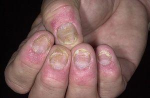 Камень и литье на ногтях фото