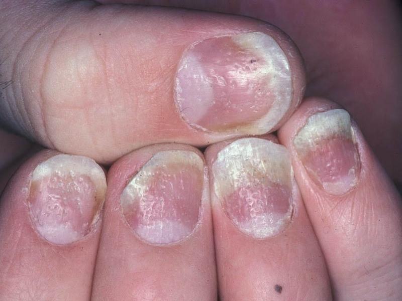 Псориаз ногтей симптомы и проявления