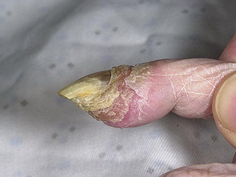 Псориаз ногтей фото и лечение псориаза ногтей в домашних условиях