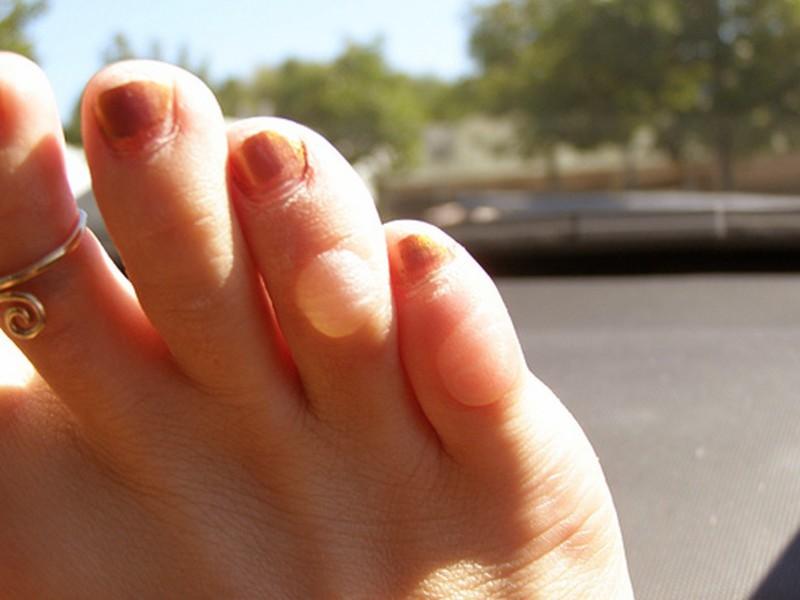 Сухие мозоли на пальцах ног лечение фото