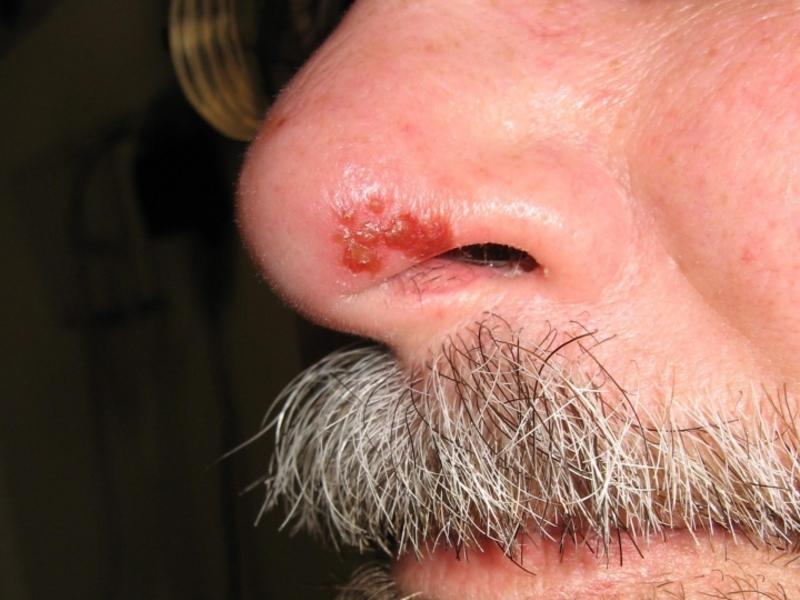 Лечение герпеса за ушами в домашних условиях