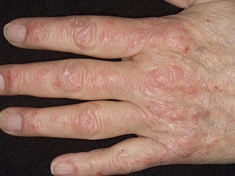 Псориаз Рук Лечение Отзывы