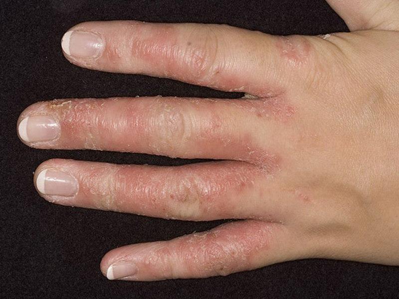 грибок ногтей на руках лечение уксусом