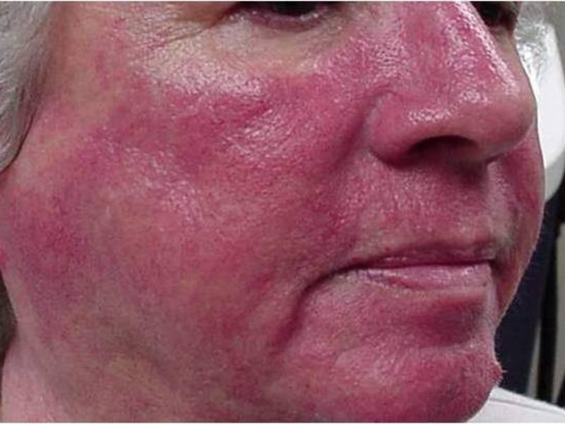 Печет кожа на лице что это