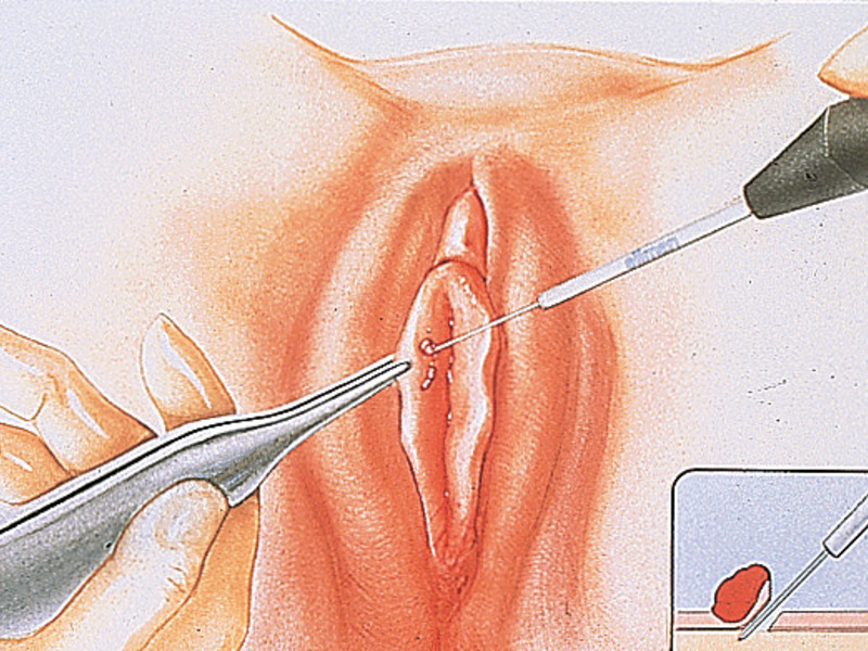 Как лечить у женщин 16 тип ВПЧ: симптомы и фото вируса папилломы человека