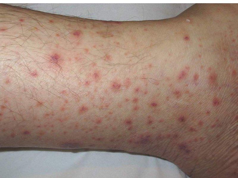 как проявляется аллергия на смесь