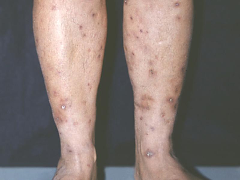 Папулонекротический туберкулез кожи
