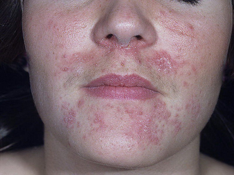 виды сыпи при аллергии фото