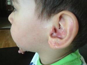Как избавиться от угрей в ушах