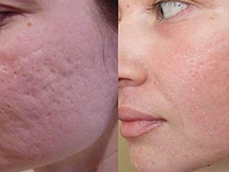 аллергия после пилинга лица