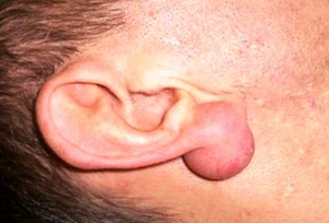Атерома на ухе - фото пациента.