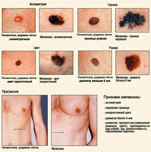 Стадии развития рака кожи показаны на рисунке.