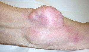 Фибросаркома тканей - это одна из стадий фибромы.