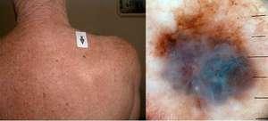 На фото показана инвазионная меланома