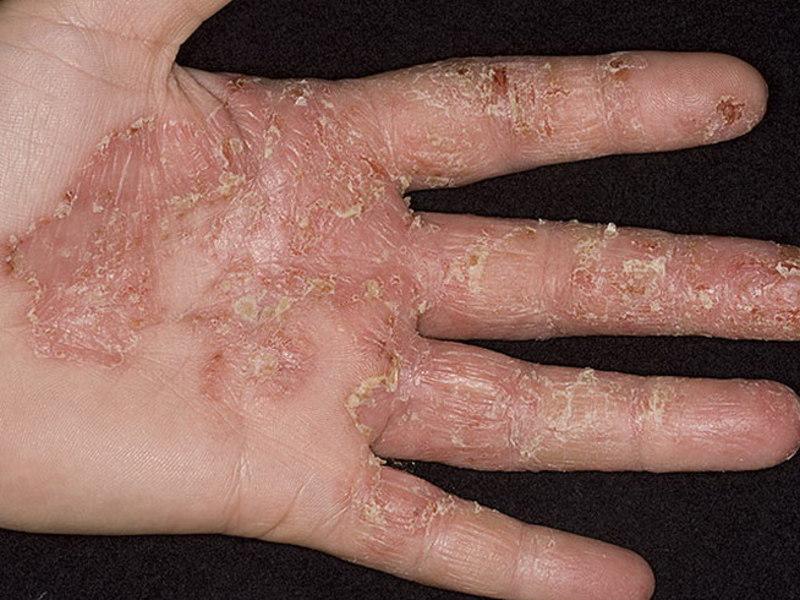 аллергия на огурцы