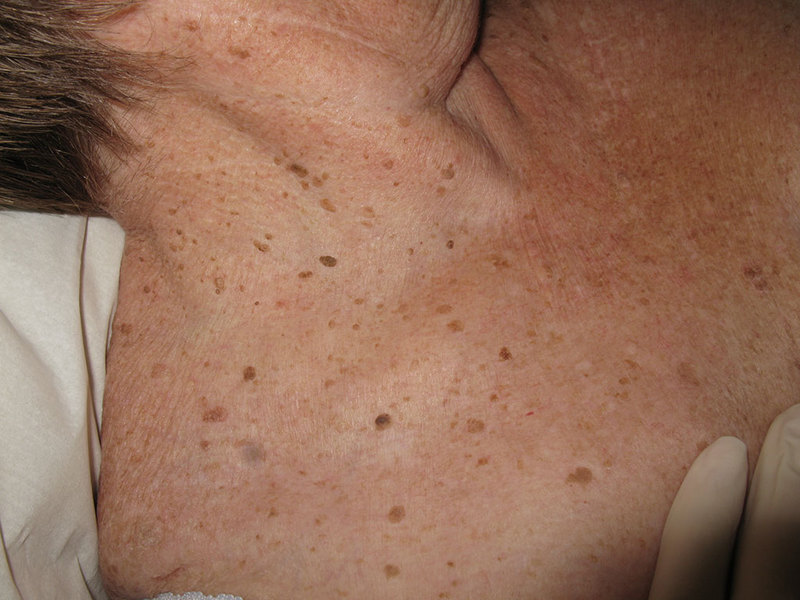 Бородавка на стопе папиллома фото