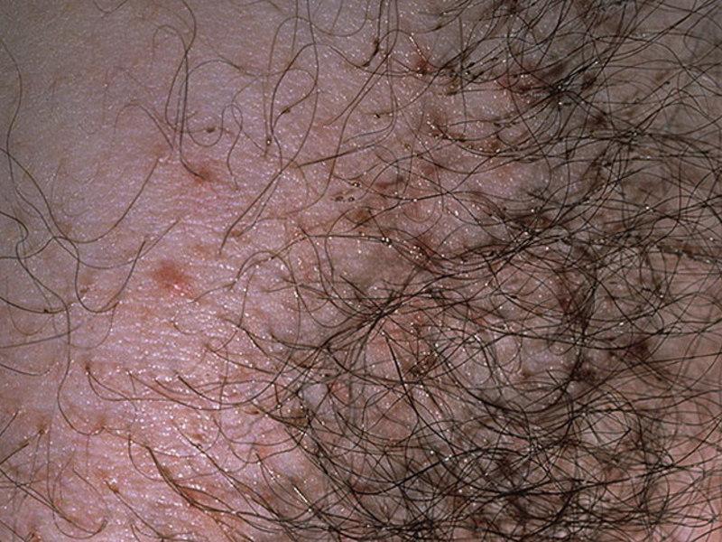 паразиты в органах человека фото