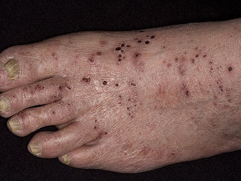Как лечить дерматит ног в домашних условиях