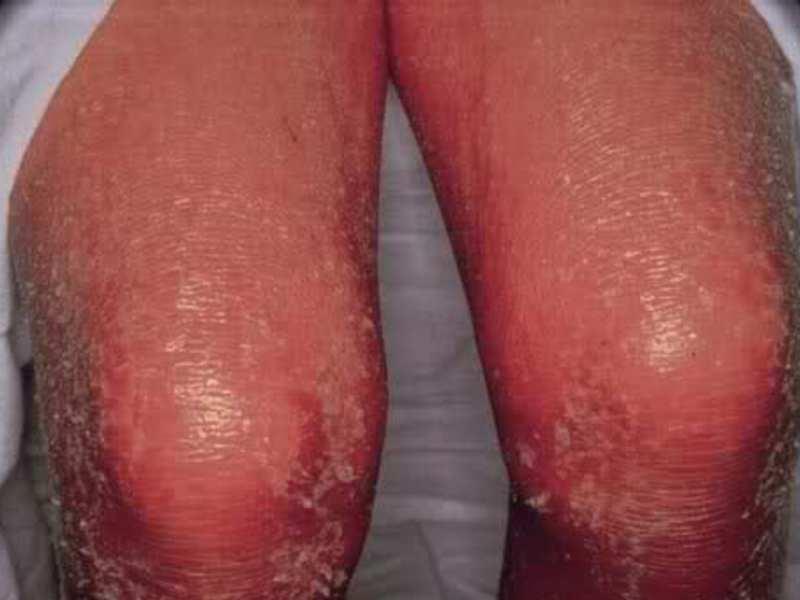 Псориаз фото симптомы и лечение у взрослых и детей мази и дома