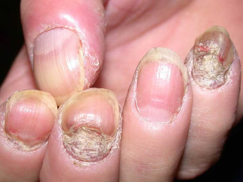 Псориаз ногтей лечение в домашних условиях фото болезни