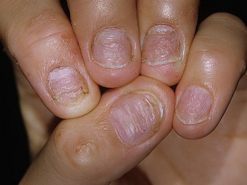 Как предотвратить псориаз на ногтях