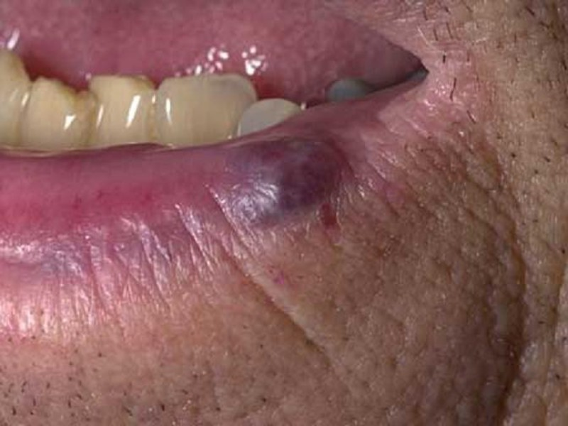 Синие наросты на губах